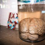 Mythbusters: Does alcohol really kill brain cells?