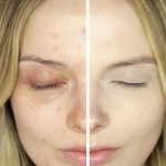 A Student's Guide to Dealing With Acne