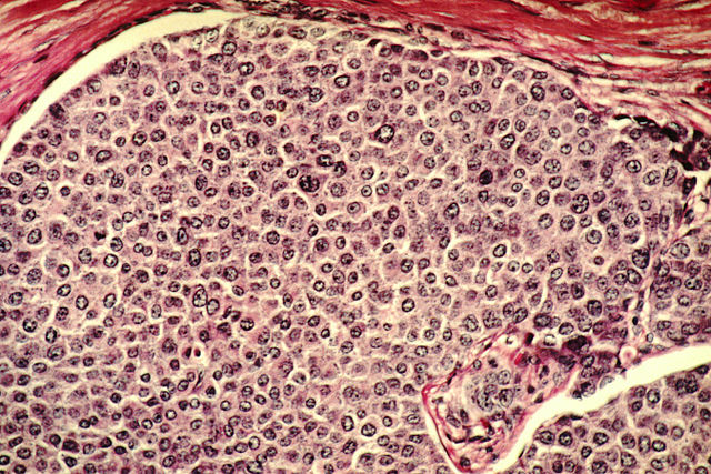 Breast Cancer Cells. Image: Dr. Cecil Fox (Photographer) - National Cancer Institute, via Wikimedia Commons