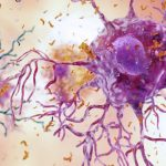 The cause of Alzheimer's disease may have finally been identified