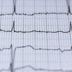Breakthrough in reversing age-related heart damage