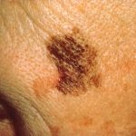 Survival rates of Advanced Skin Cancer soar with novel treatment