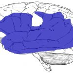 Word of the week: Aphasia